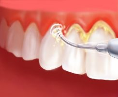 Снятие зубного налета ультразвуковым скалером